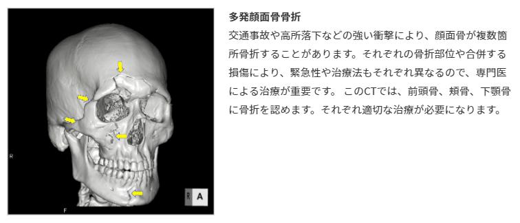 笠原亮選手が全治不明の重傷。顔面多発性骨折。お盆の地元レースでのアクシデントで。静岡支部・ボートレーサー・事故